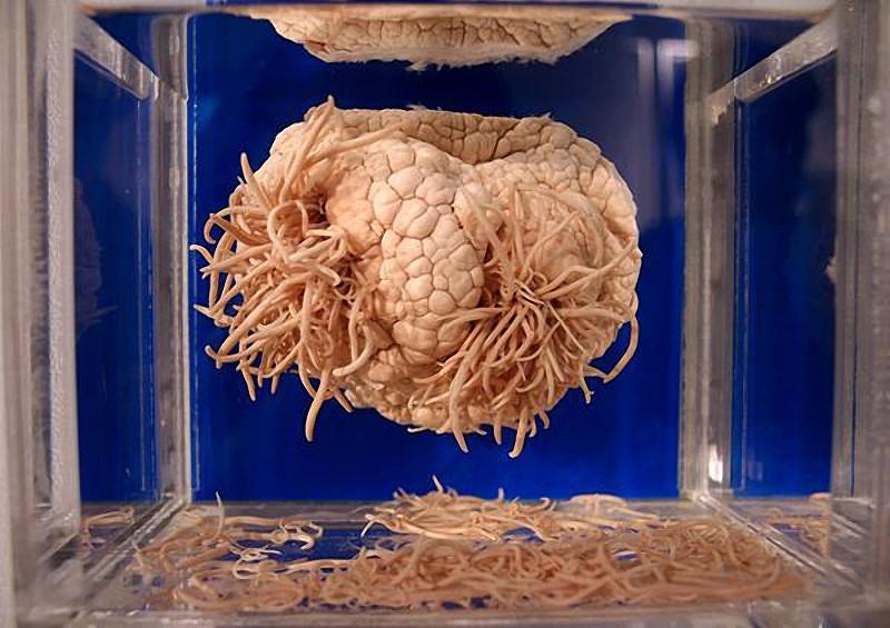 Фото: Паразиты в головном мозге человека